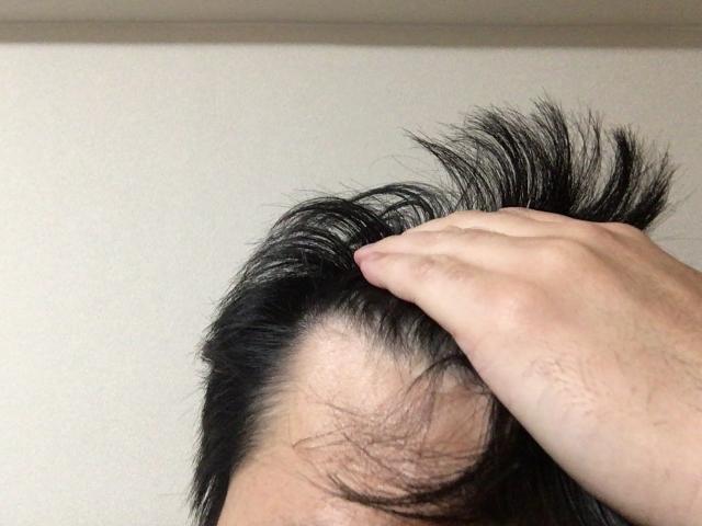 ハゲやすい人・髪質・特徴・頭の形・髪型・生え際・関係