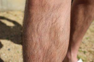 毛深い人・ハゲやすい・抜け毛・男性ホルモンの関係