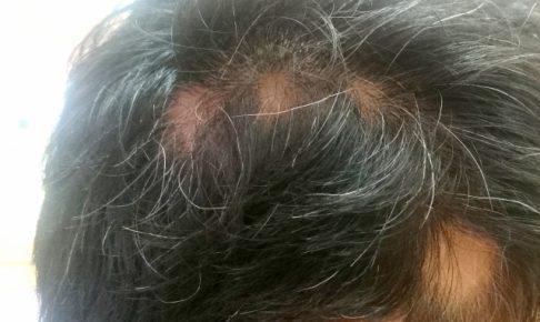 円形脱毛症・原因・自然治癒・効果的な食べ物・期間