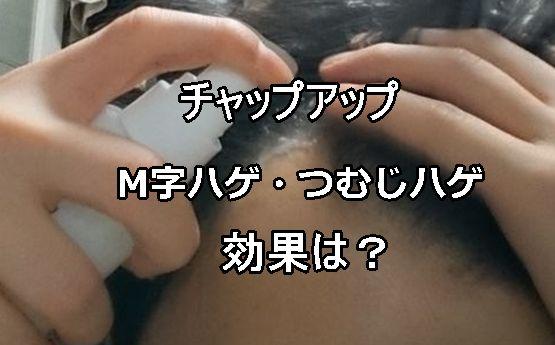 チャップアップ・M字・頭頂部