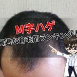 M字ハゲ・最適・育毛剤・ランキング