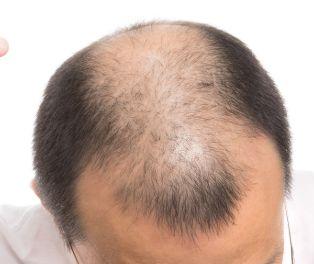 早めの薄毛対策