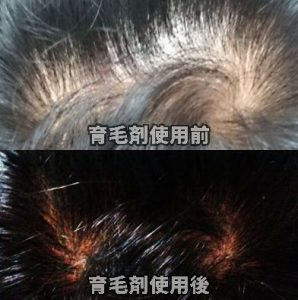 育毛剤ランキング01