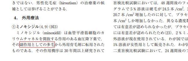 ミノキシジル・多毛症