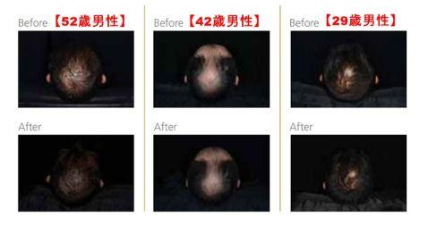 リデンシル・頭皮・データ