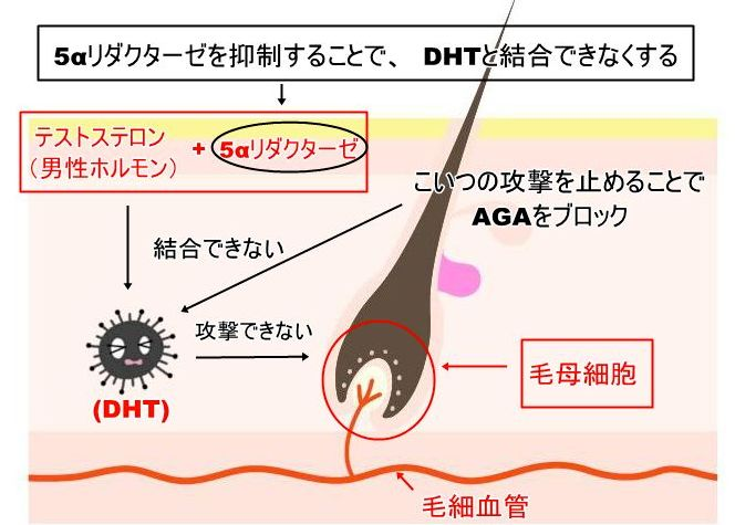 5αリダクターゼ抑制08