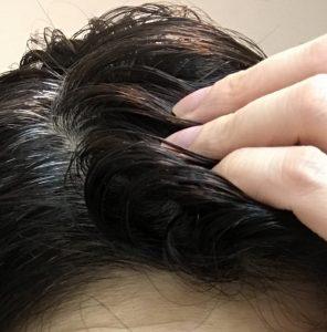 M字ハゲ・原因・髪型