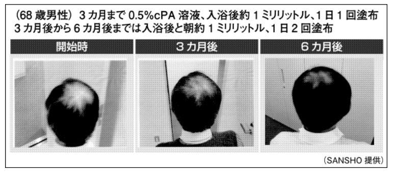 NcPA・人体実験