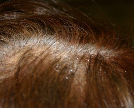 粃糠(ひこう)性脱毛症・脂漏(しろう)性脱毛症
