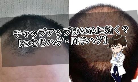 チャップアップ・AGA
