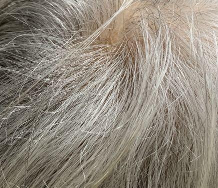 EPA・白髪