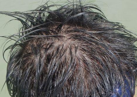 髪が濡れると頭皮が見える