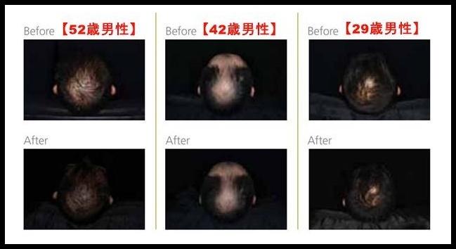 臨床試験で薄毛が改善した成分もある