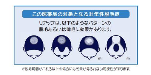 リアップ 壮年性脱毛症