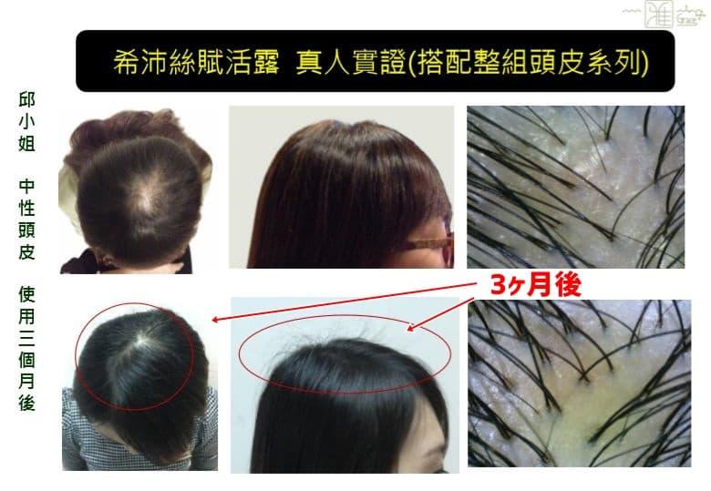 台湾女性(3ヶ月塗布)最新